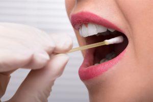 Immunity in the salivary gland